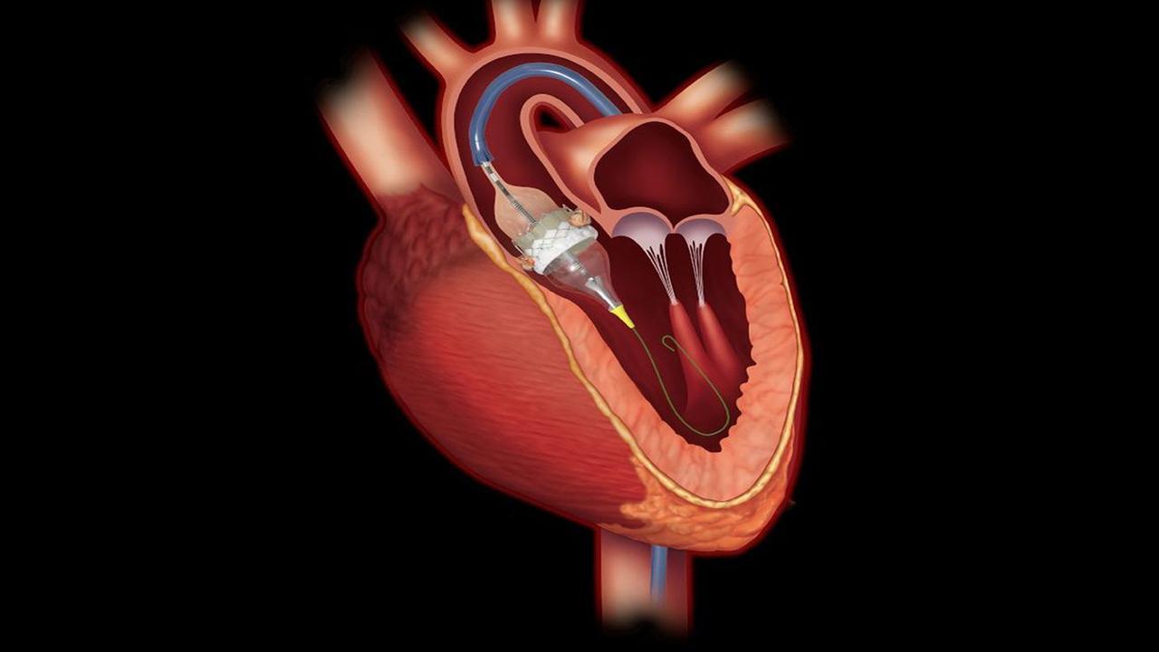 خرید لیسانس ویراستار ژن برای مقابله با بیماریهای قلبی