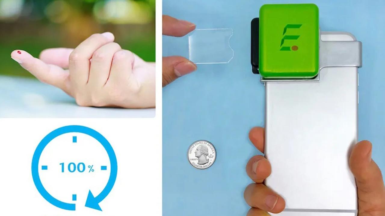 همگرایی سه فناوری برای ساخت کوچکترین دستگاه شمارشگر خون