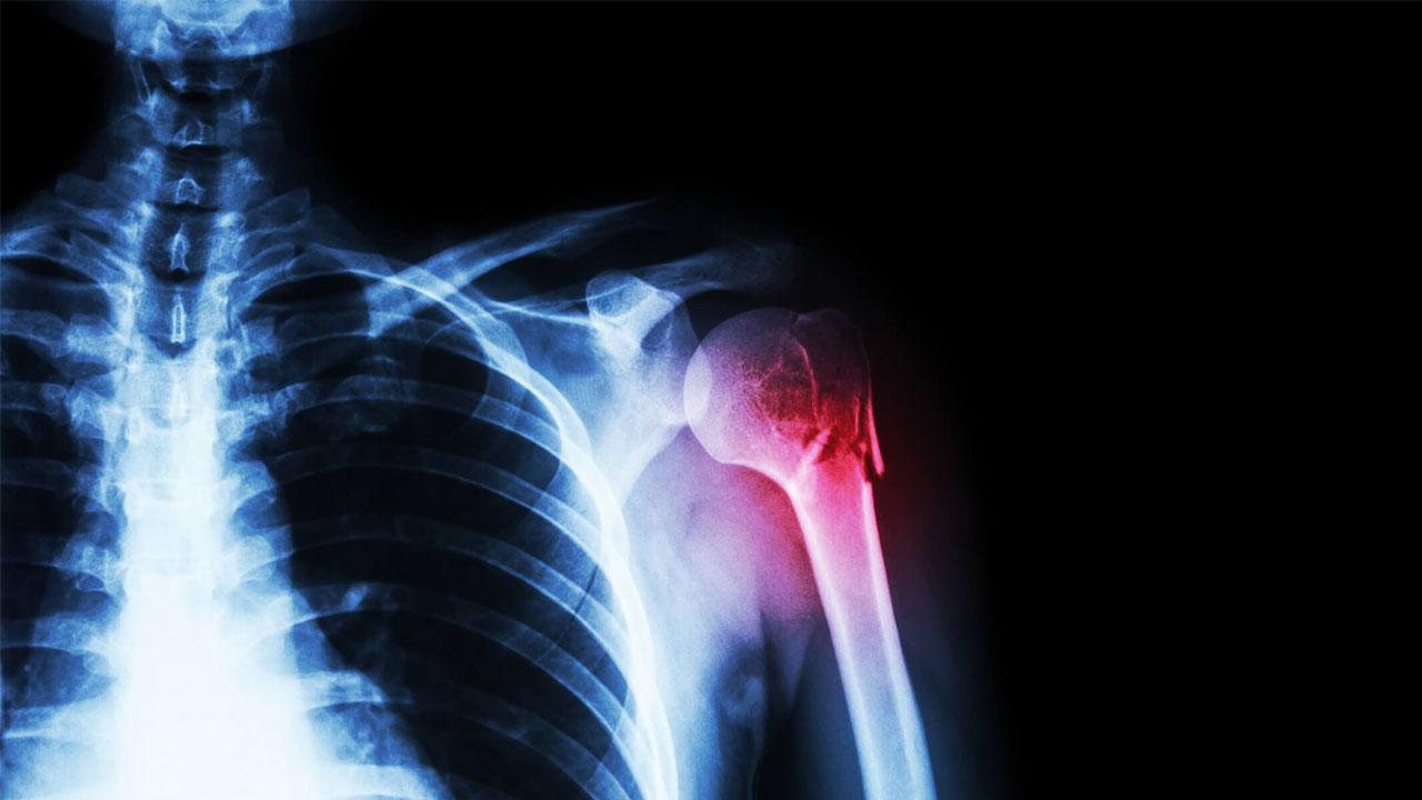 بودجه ۵٫۶ میلیون دلاری وزارت دفاع آمریکا برای نانوداربست ترمیم استخوان