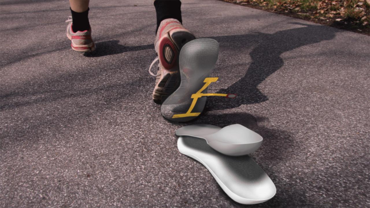 کفی هوشمند گرافنی برای جلوگیری از زخم پای دیابتی
